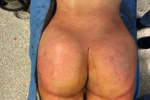 Clinic Ermitage – Avant/Après - Lipofilling fesses